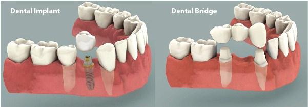 thực hiện làm trụ implant và cầu răng