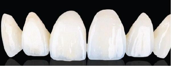 dental_work_westcoast