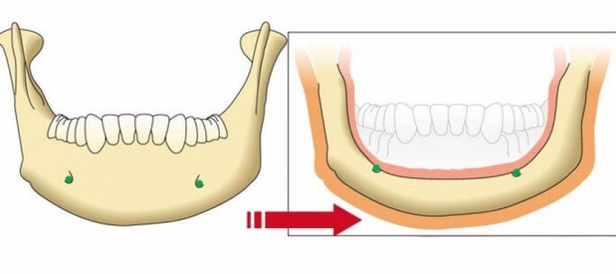 Phần 2: Cấy Ghép Implant Nha Khoa All-On-4™ – Không đau hoặc sưng tấy