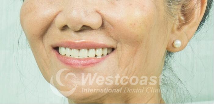 nguyen_thi_thuan_dental_after