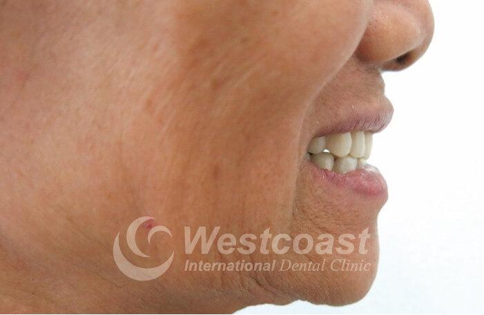 nguyen_thi_thuan_dental_after_2