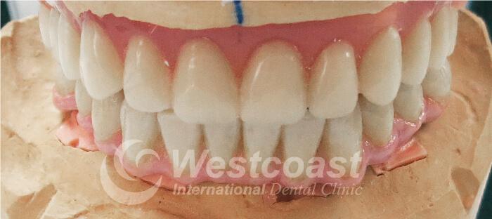westcoast_dental_2