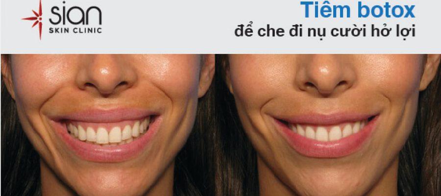 Cười hở lợi được điều trị thế nào?