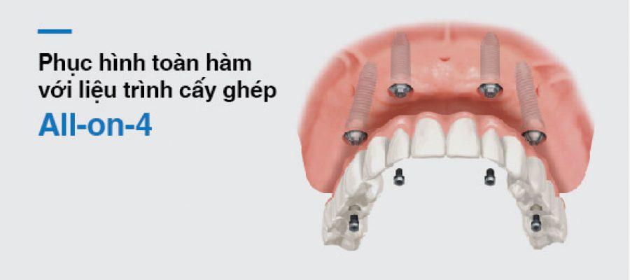 Implant bao nhiêu là đủ và tốt cho bạn?