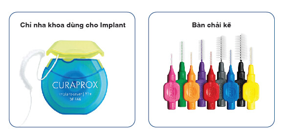 Vệ sinh Implant