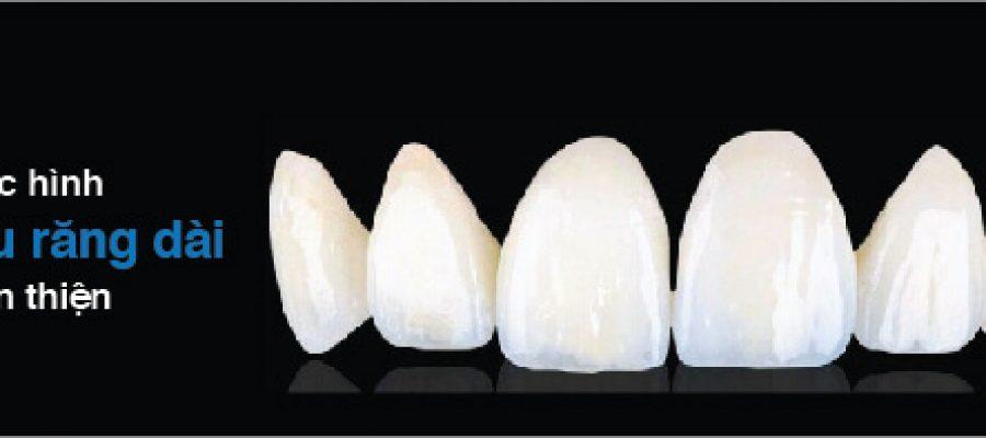 Cầu răng dài tốn kém hơn cầu răng ngắn?