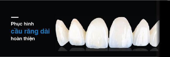 Cầu răng dài hoàn thiện thực hiện tại Westcoast