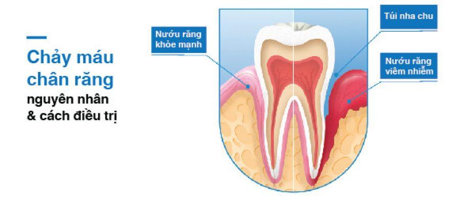 Chảy máu chân răng: nguyên nhân và cách điều trị là gì?