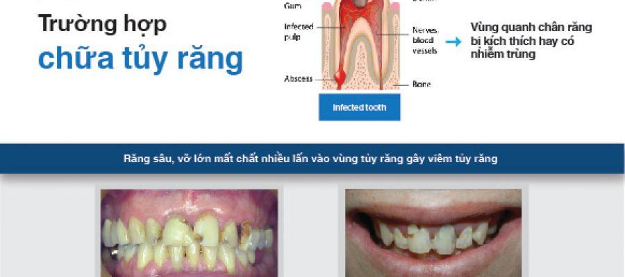 Chữa tủy trước khi phục hình răng có nên không?