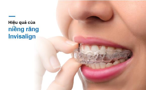 Niềng răng vô hình invisalign hiệu quả tại Nha khoa Westcoast