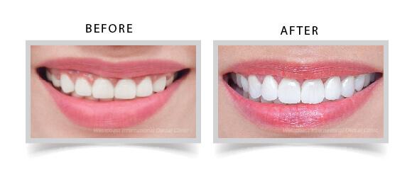 Bọc răng sứ hiệu quả tại nha khoa Westcoast