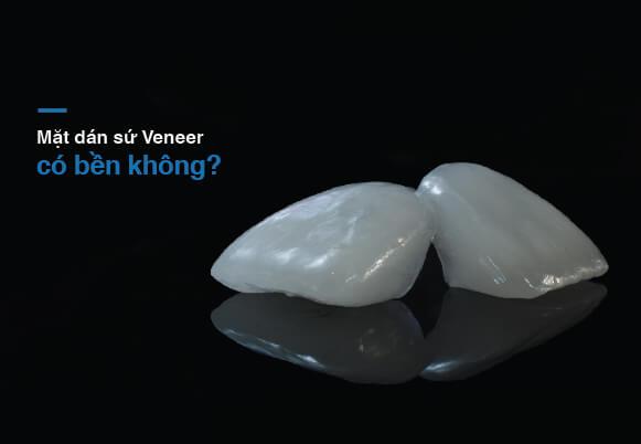 Mặt dán sứ Veneer siêu bền tại Westcoast