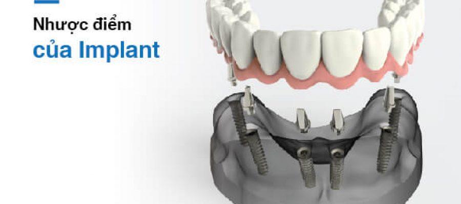 Nhược điểm của implant là gì?