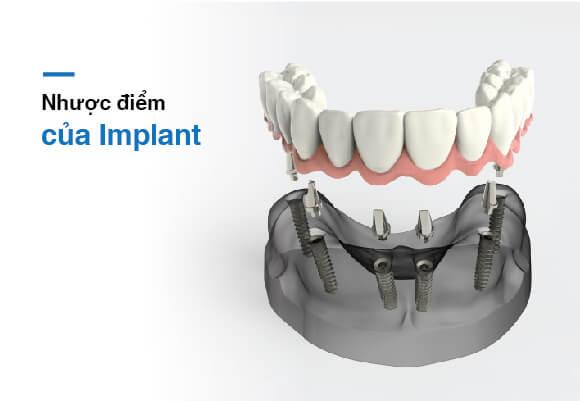 Nhược điểm của implant được khắc phục tại Westcoast