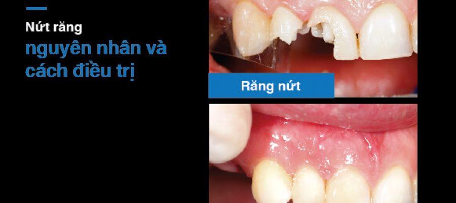 Nứt răng – nguyên nhân và cách điều trị là gì?