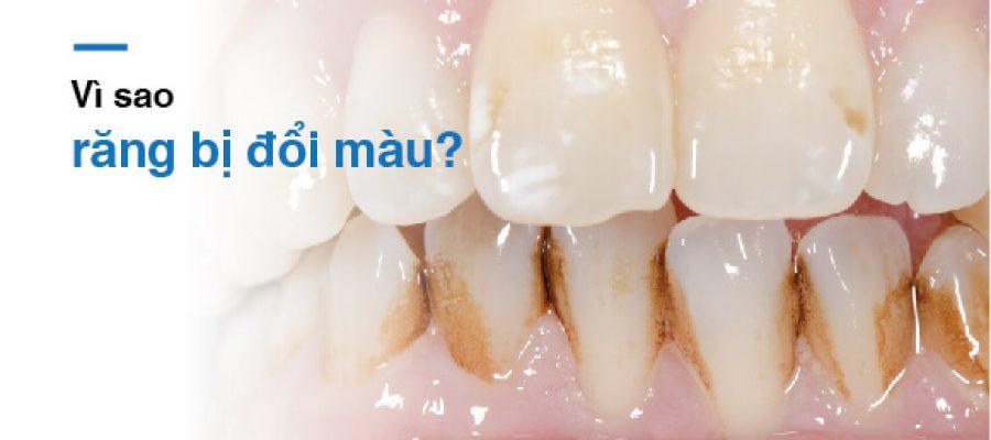 Răng bị đổi màu vì sao?