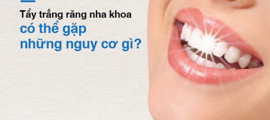 Tẩy trắng răng nha khoa có thể gặp những nguy cơ gì?