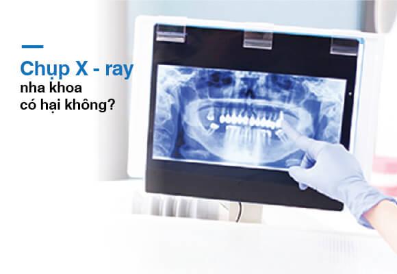 Chụp X-ray nha khoa không gây hại tại nha khoa Westcoast