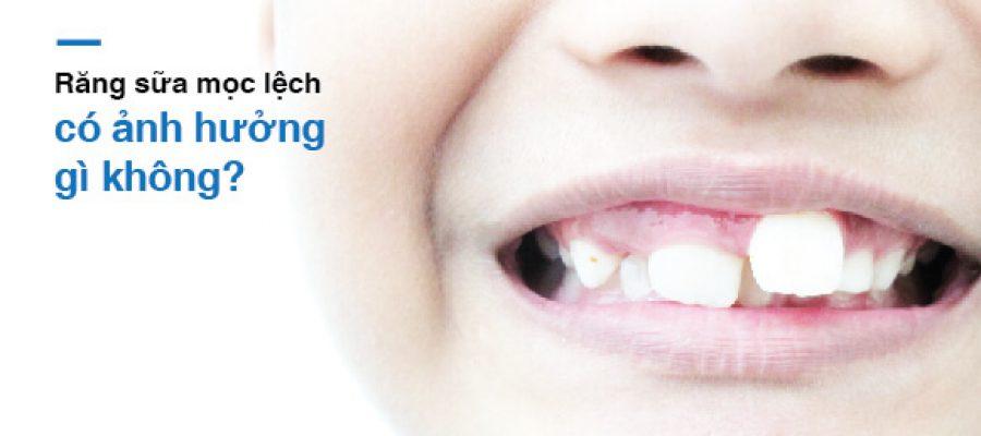 Răng sữa mọc lệch có ảnh hưởng gì không?