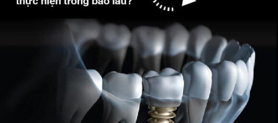 Trồng răng implant mất bao lâu?
