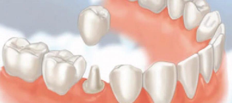 Bọc Răng Sứ Thẩm Mỹ – Giá Rẻ Có Đi Kèm Với Chất Lượng?