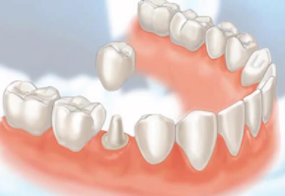 Bọc răng sứ thẩm mỹ an toàn tại Westcoast