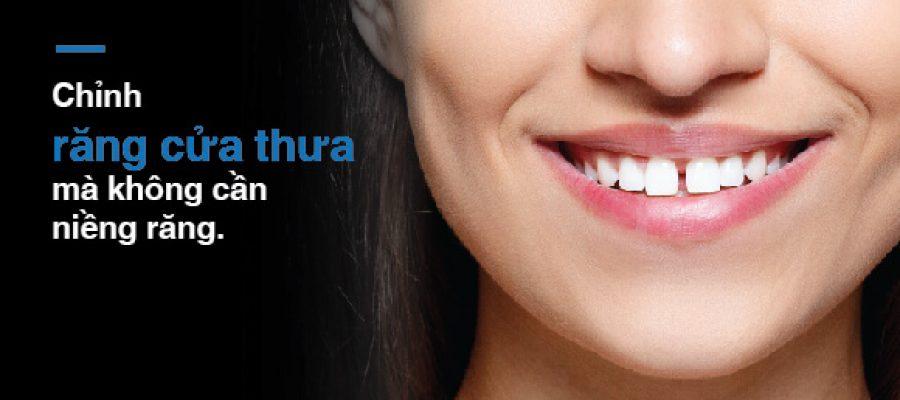 Chỉnh Răng Cửa Thưa Mà Không Cần Niềng Răng?