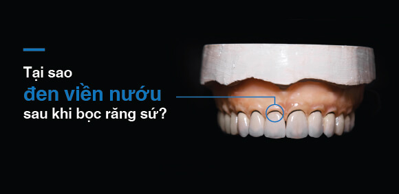 Tại sao đen viên nướu sau khi bọc răng sứ?
