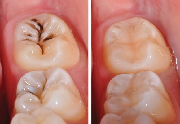 Trám răng thẩm mỹ hiệu quả tại nha khoa Westcoast
