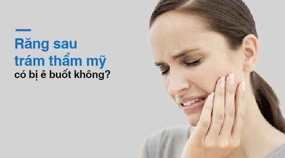 Răng sau trám thẩm mỹ có bị ê buốt không?