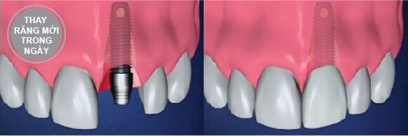 Implant Trong Ngày Nha Khoa Westcoast