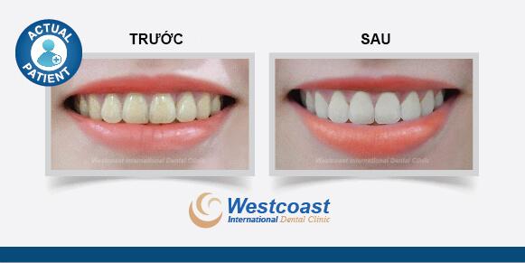 Tẩy trắng răng chuyên nghiệp
