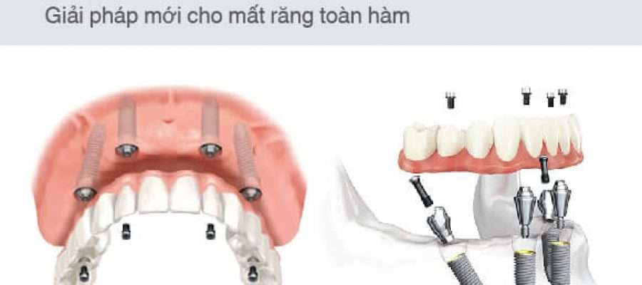 CẤY GHÉP IMPLANT ALL ON 4™