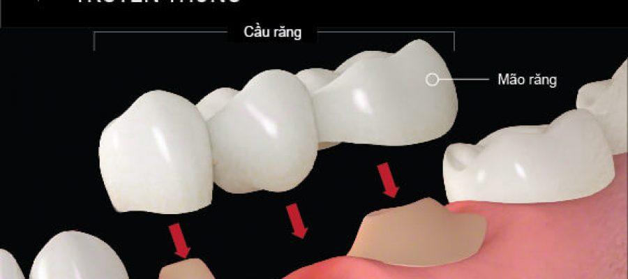 5 Loại Cầu Răng: Loại Nào Phù Hợp Với Bạn Nhất?
