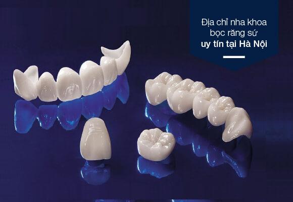westcoast địa chỉ nha khoa bọc răng sứ uy tín tại Hà nội