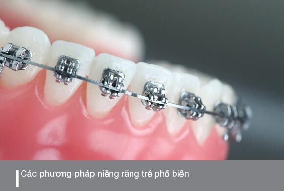 các phương pháp niềng răng cho trẻ phổ biến