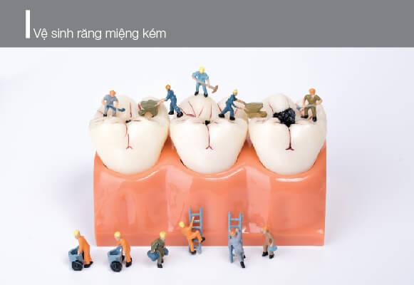 vệ sinh răng miệng kém là nguyên nhân răng bị ố vàng
