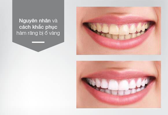 nguyên nhân và cách khắc phục răng bị ố vàng