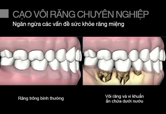 cạo vôi răng chuyên nghiệp