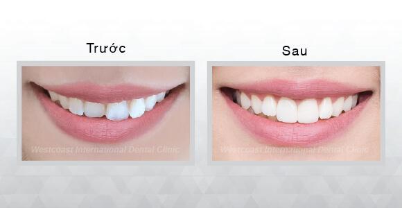 trước và sau sử dụng mặt dán sứ ultrathin veneer