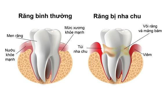 mất răng cho bệnh nha chu nha khoa westcoast