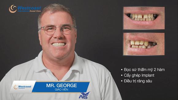 điều trị thẩm mỹ răng toàn hàm