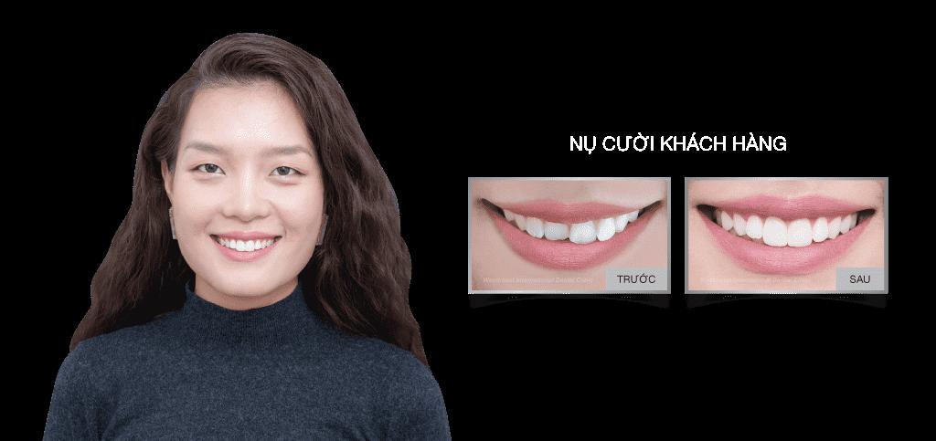 Dental Veneers Nha Khoa Westcoast