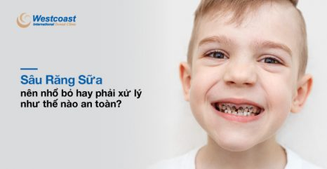 sâu răng sữa ở trẻ