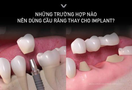 Trường hợp nào dùng cầu răng thay cho implant