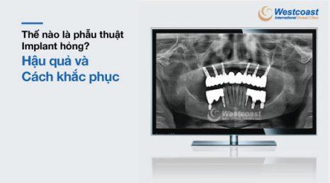 phẫu thuật implant hỏng - hậu quả và cách khắc phục