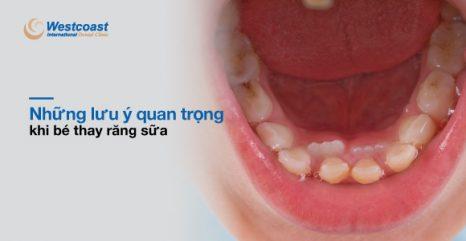 những lưu ý quan trọng khi bé thay răng sữa