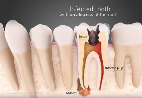 u nang răng là gì