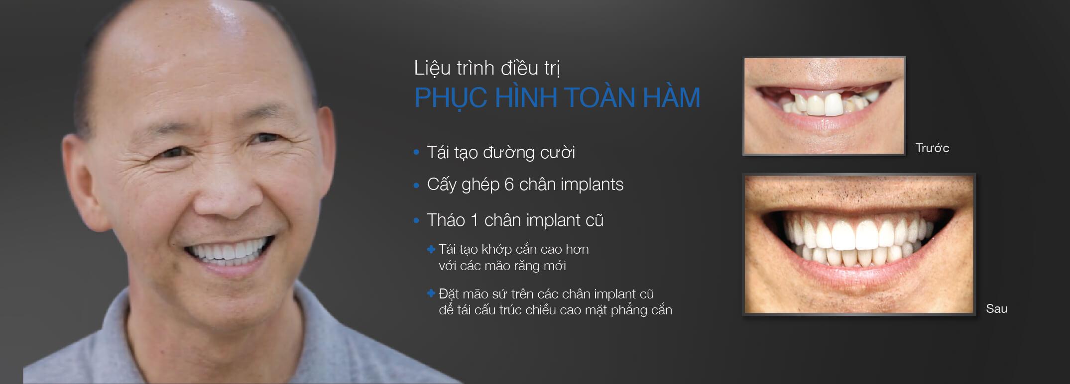 lieu-trinh-phuc-hinh-toan-ham-benh-nhan-westcoast