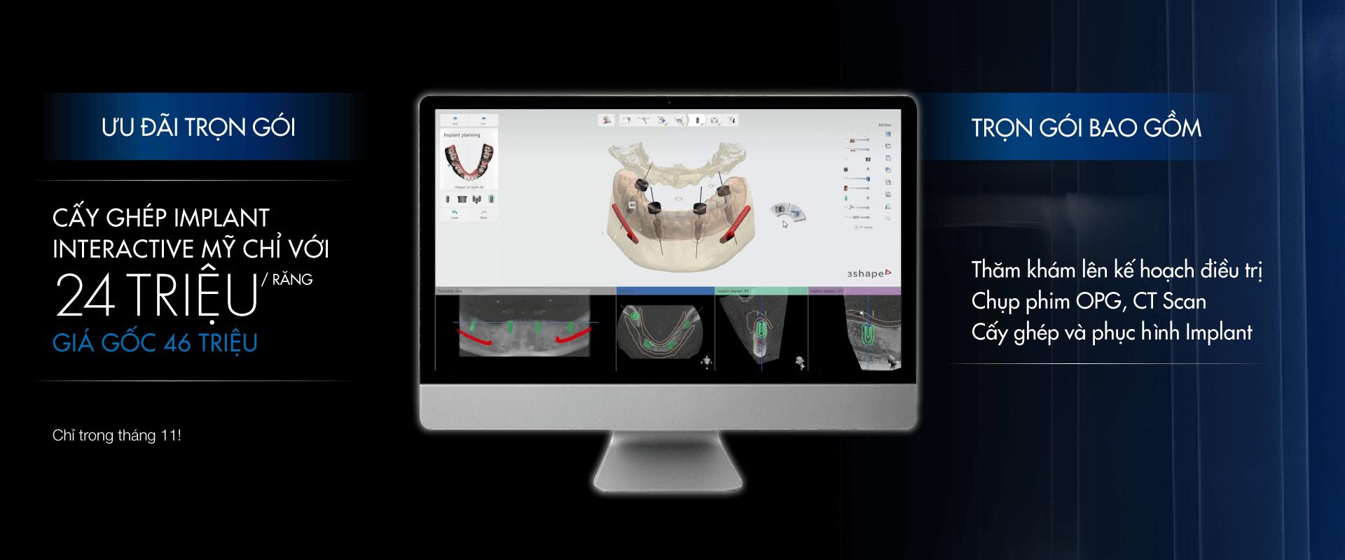tài trợ chi phí trồng răng implant - ưu đãi giảm giá trồng răng Implant